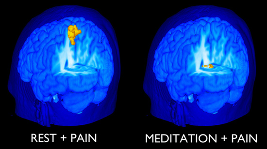 benefits-of-meditation-2-pain